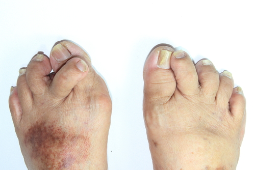 Podiatrist in Akron | Hammertoes in Akron | Green Foot & Ankle ...